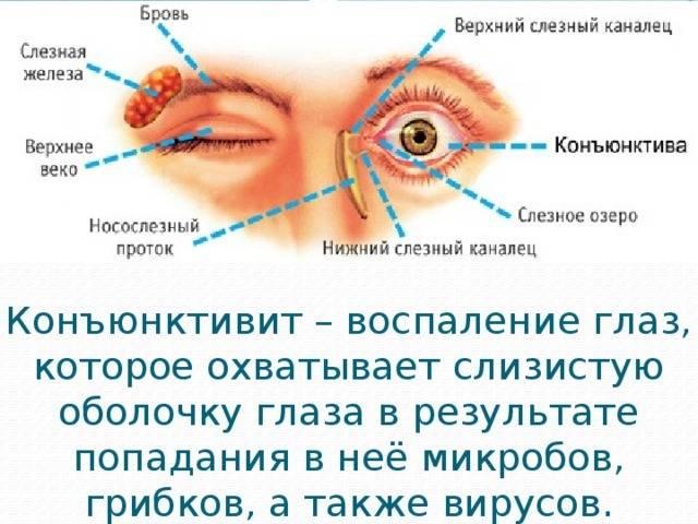 Чем лечить вирусный конъюнктивит глаз: лечение у взрослых в домашних условиях