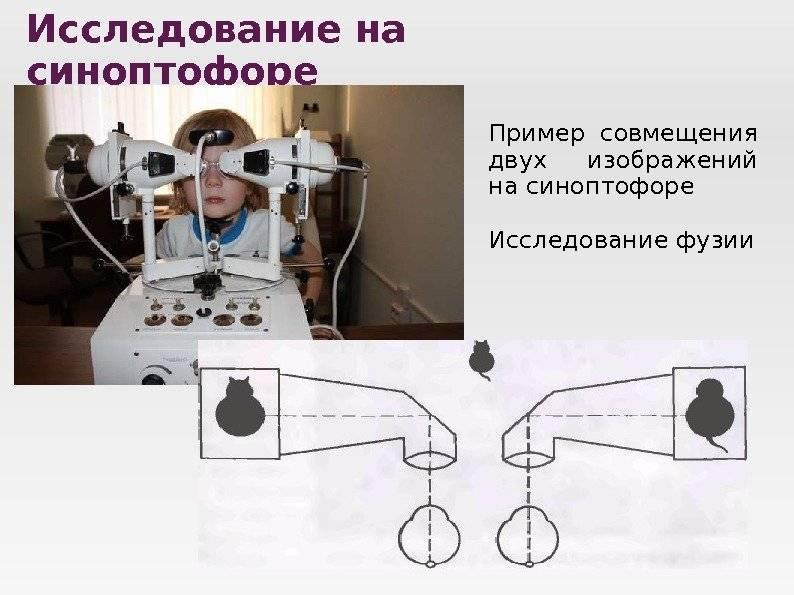 Синоптофор: устройство прибора, назначение домашнего, принцип работы для лечения косоглазия, инструкция по применению, аппарат