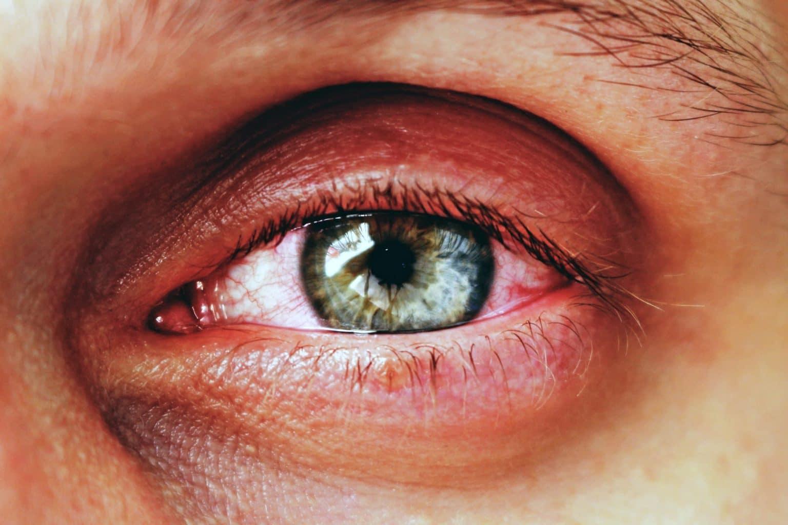 Как передается конъюнктивит от человека к человеку, заразен ли конъюнктивит или нет? | медицинский портал spacehealth