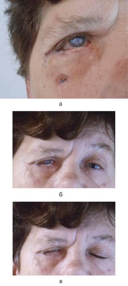 Удаление халязиона: показания, методы, проведение операции, результат и реабилитация