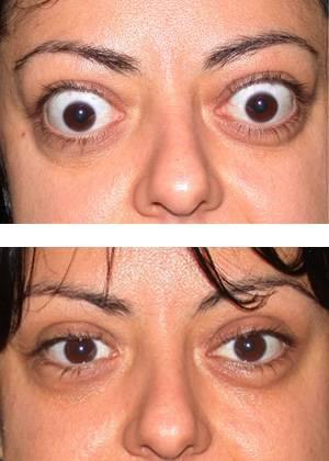 Экзофтальм: симптомы, диагностика, лечение, операция и осложнения