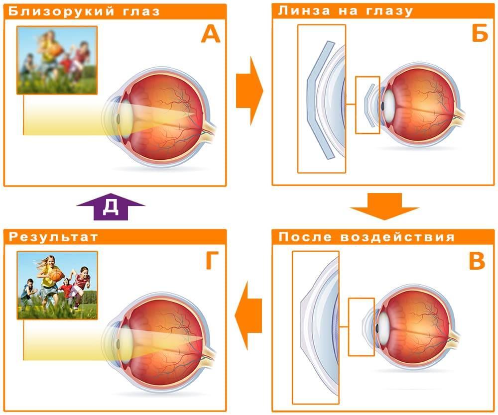 Отзывы о ночных линзах для восстановления зрения