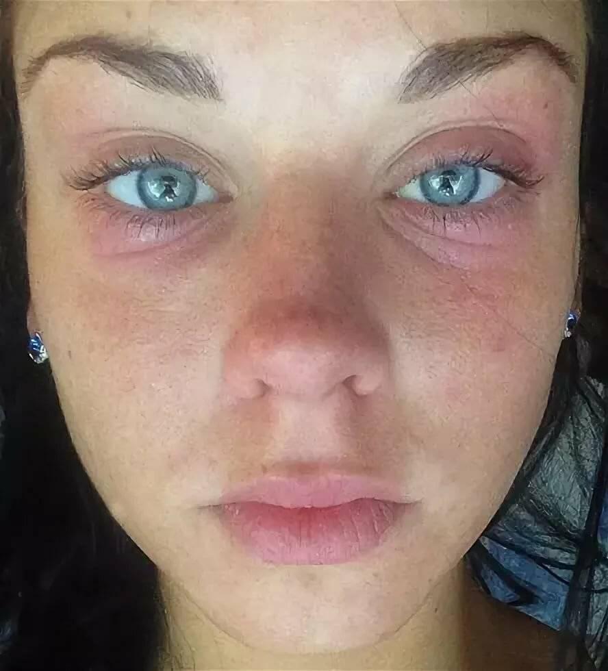 Аллергия на веках глаз причины — аллергия