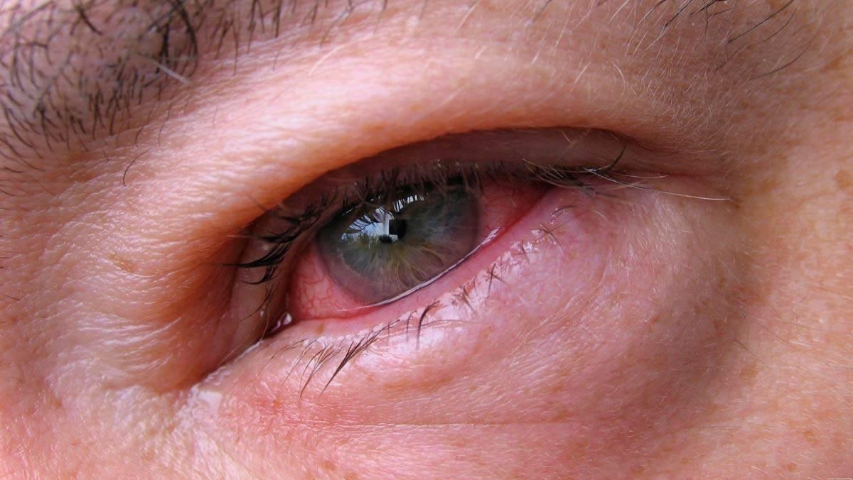 Воспаление глаза: чем лечить, симптомы, диагноз, как снять отёк мазью, лечение у взрослых в домашних условиях народными средствами