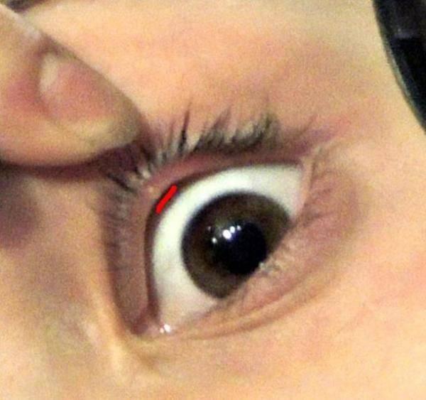 Прыщ внутри глаза: чем лечить, фото, причины | doloipryshi.ru