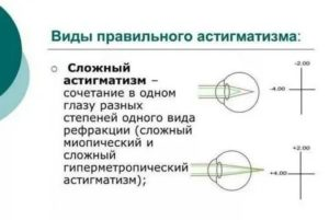 Гиперметропический астигматизм у детей: сложный, простой, обоих глаз, как лечить заболевание у ребенка