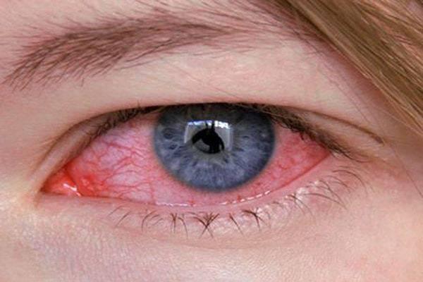 Что такое кератоконъюнктивит? симптомы и лечение заболевания