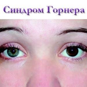Проявление симптомов синдрома бернара-горнера