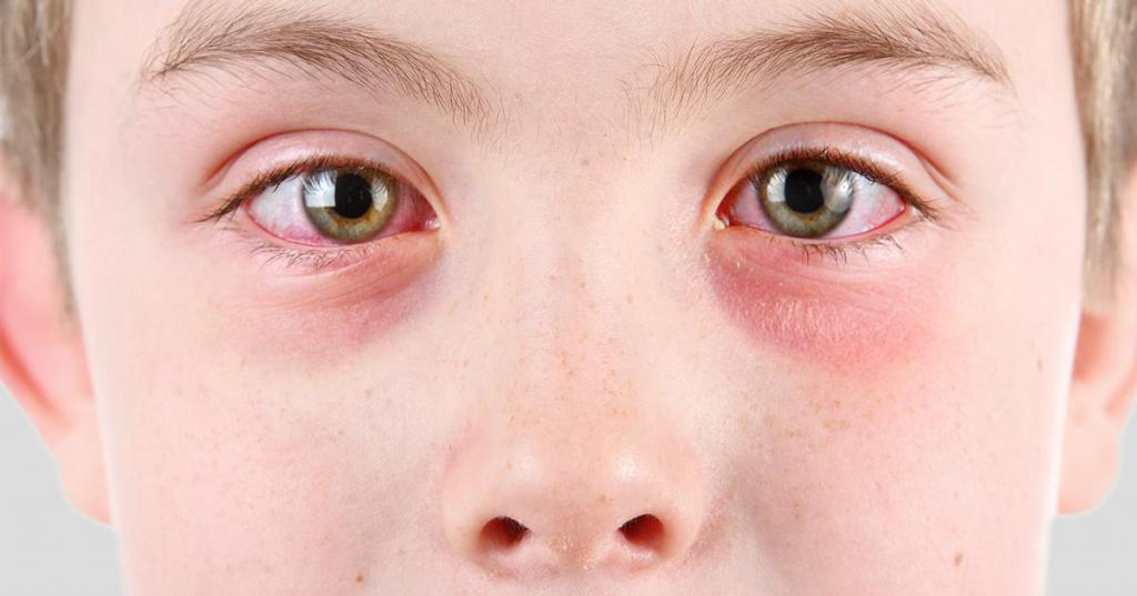 Заболевания кожи вокруг глаз и воспаление век. диагностика и лечение
