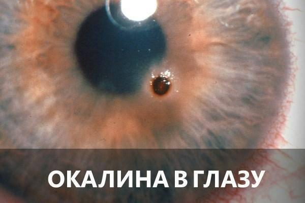 Окалина попала в глаз - вопрос офтальмологу - 03 онлайн