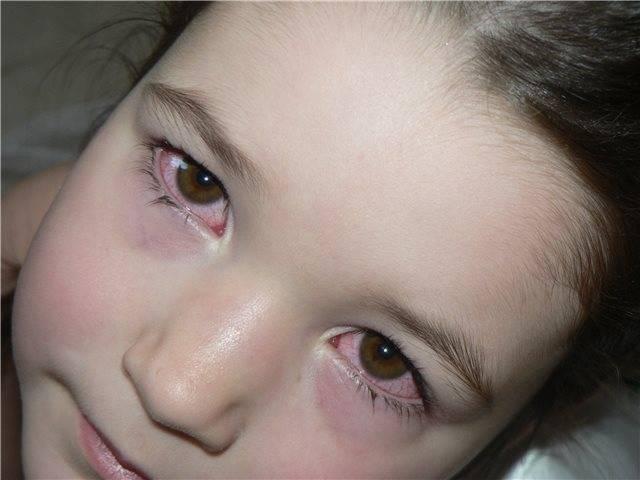 Насморк и красные глаза у ребенка: почему появляется заложенность носа, кашель и покраснение склер при простуде и орви
