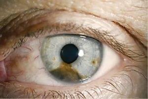 Что такое рак глаза: симптомы и диагностика