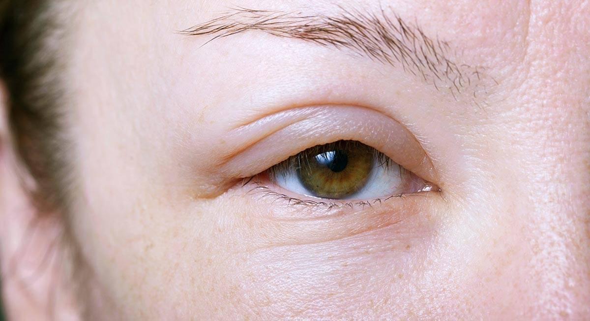 Отек глаз при аллергии. как быстро снять аллергический отек с глаз?