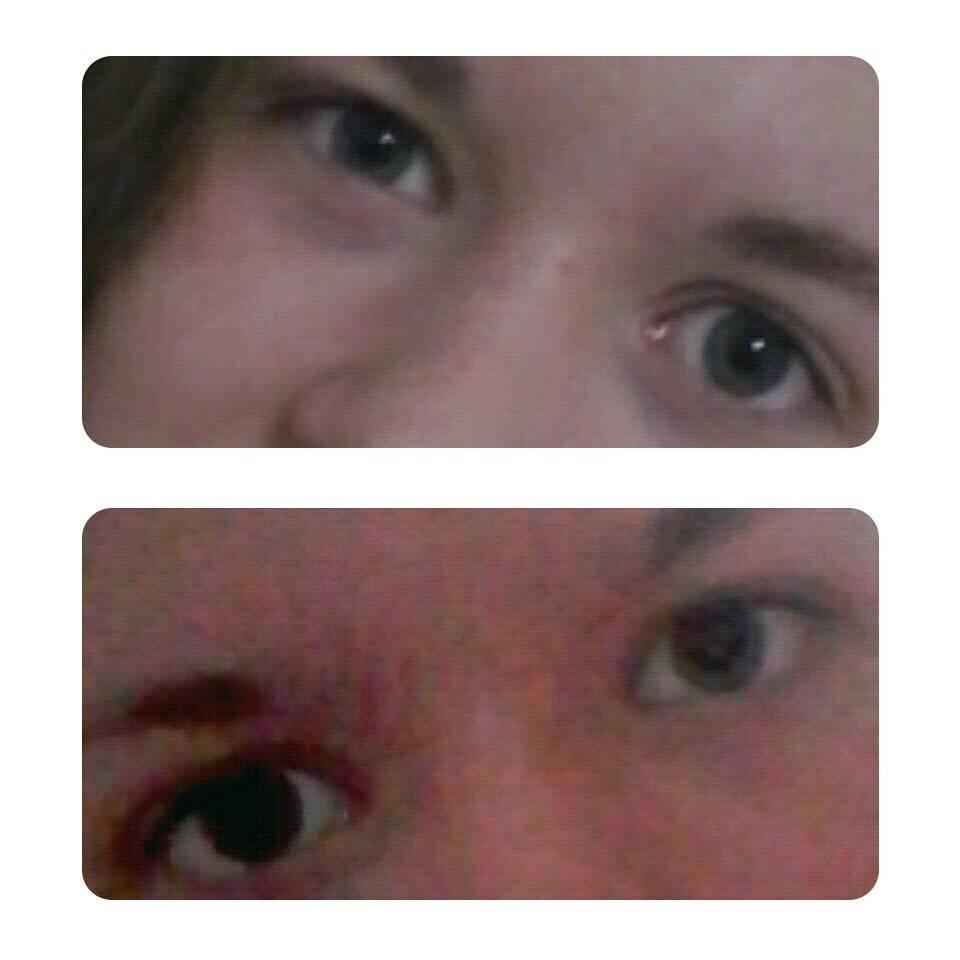 """Один глаз видит хуже другого: причины, профилактика, лечение - """"здоровое око"""""""