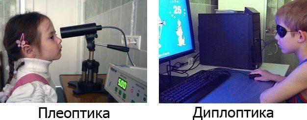 Лечение косоглазия у детей – все новые методы: аппаратное, хирургическое (операция), лечение без операции - moscoweyes.ru