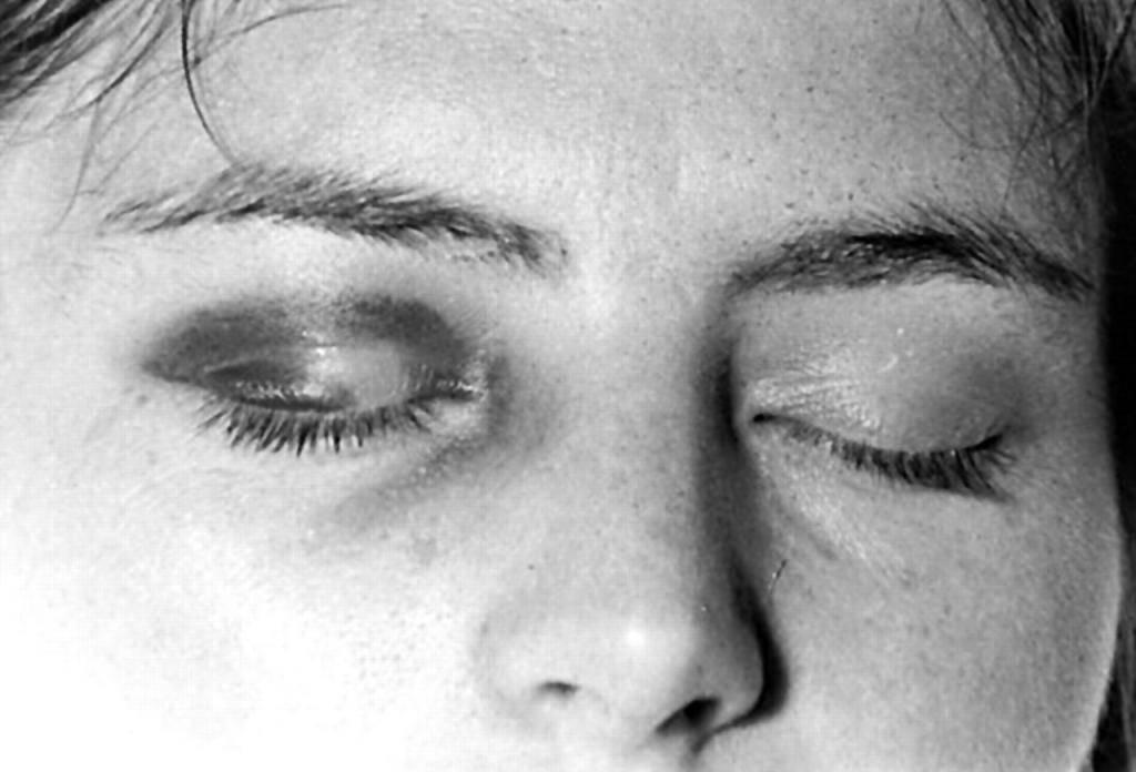 9 способов как снять отек глаз после слез