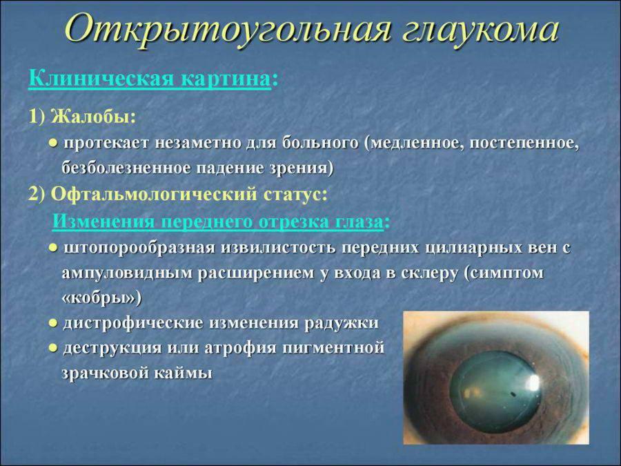 Закрытоугольная глаукома: что это такое, симптомы, причины, чем она отличается от открытоугольной, остроугольной и узкоугольной