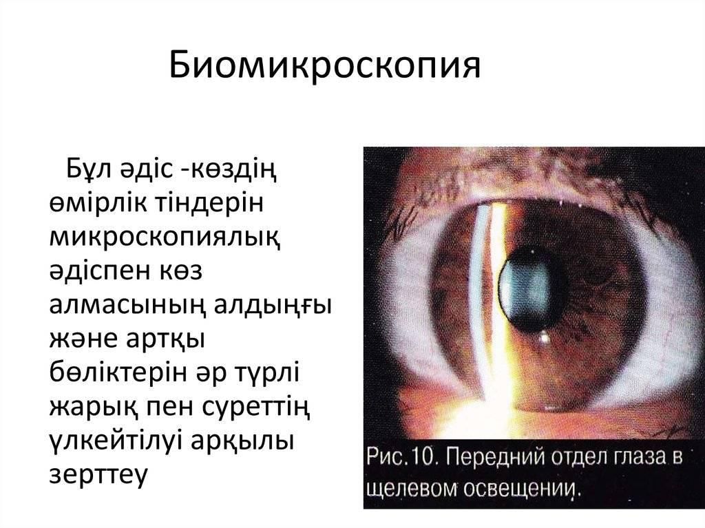 Эндотелиальная биомикроскопия. безопасный бесконтактный метод исследования и диагностики сред глаза: что такое биомикроскопия? как проводится биомикроскопия глаза