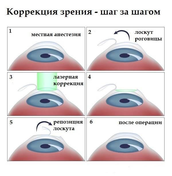 Астигматизм — последствия после лазерной коррекции, противопоказания к операции