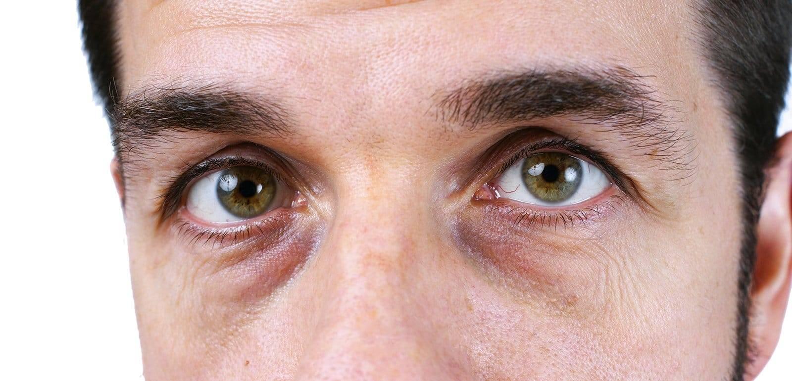 Стеклянный взгляд у человека причина. стеклянные глаза: что означает симптом и как с ним бороться. тревожный признак: затуманенное зрение при диабете