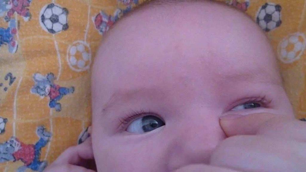 Зондирование слезного канала у детей: особенности у новорожденных и у малышей после года
