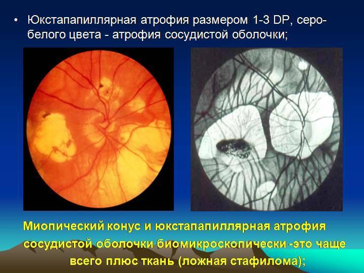 Что такое миопический конус. миопический конус и стафилома — причины и лечение. симптомы патологии и ее диагностика