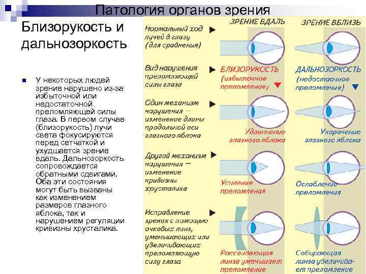 Нарушение аккомодации глаза: что это такое, симптомы, причины, лечение у взрослых и детей, классификация, диагностика