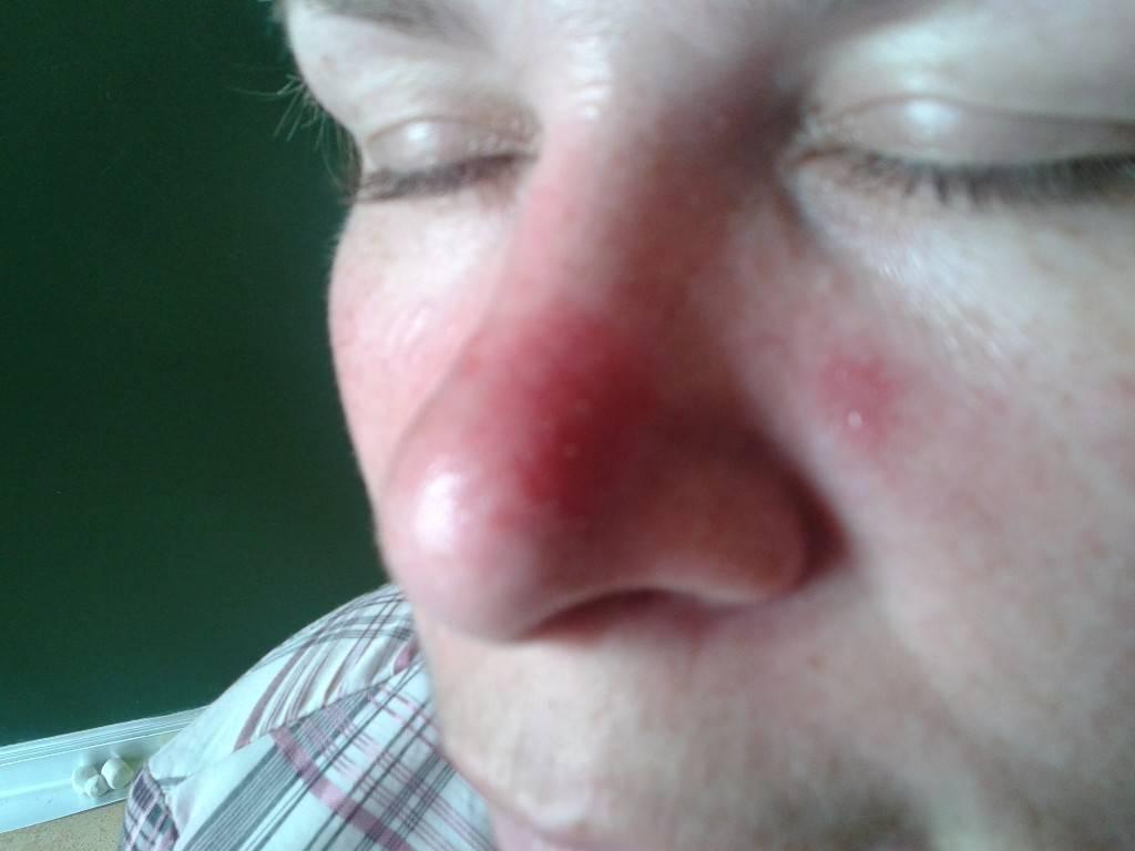 Чешутся глаза в уголках около переносицы причины и лечение - мед портал tvoiamedkarta.ru