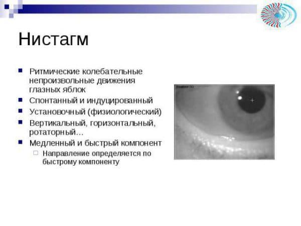 Глаза «убегают» вправо или влево: что это за болезнь – горизонтальный нистагм?