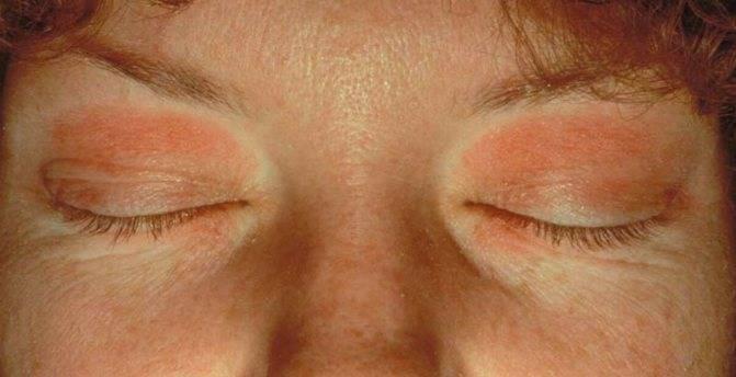 Почему появляется покраснение вокруг глаз?