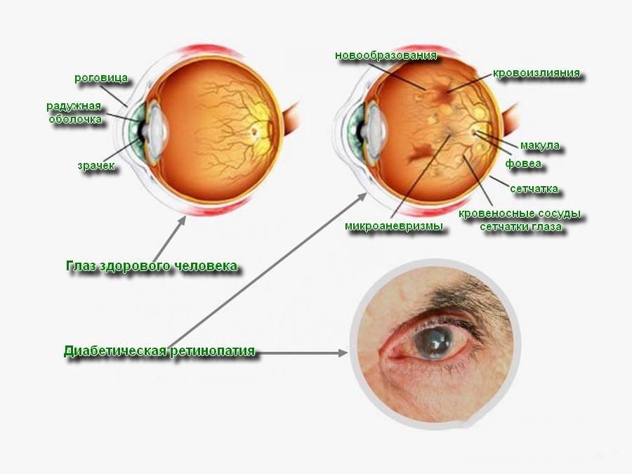 Ретинопатия: симптомы, причины, лечение, виды (фоновая, посттромботическая, центральная серозная, гипертоническая, пролиферативная, непролиферативная, сетчатки), стадии, диагностика