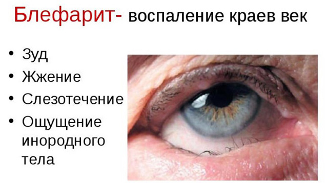 Симпатическая офтальмия: симптомы, диагностика, лечение