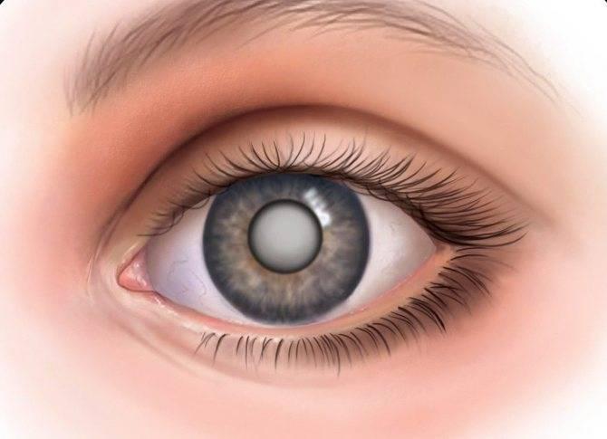 Туман в глазах, симптомы, причины, лечение, профилактика.