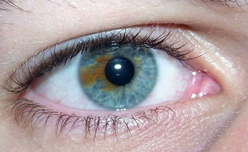 Виды пятен на глазном яблоке: серые, белые, чёрное и фото