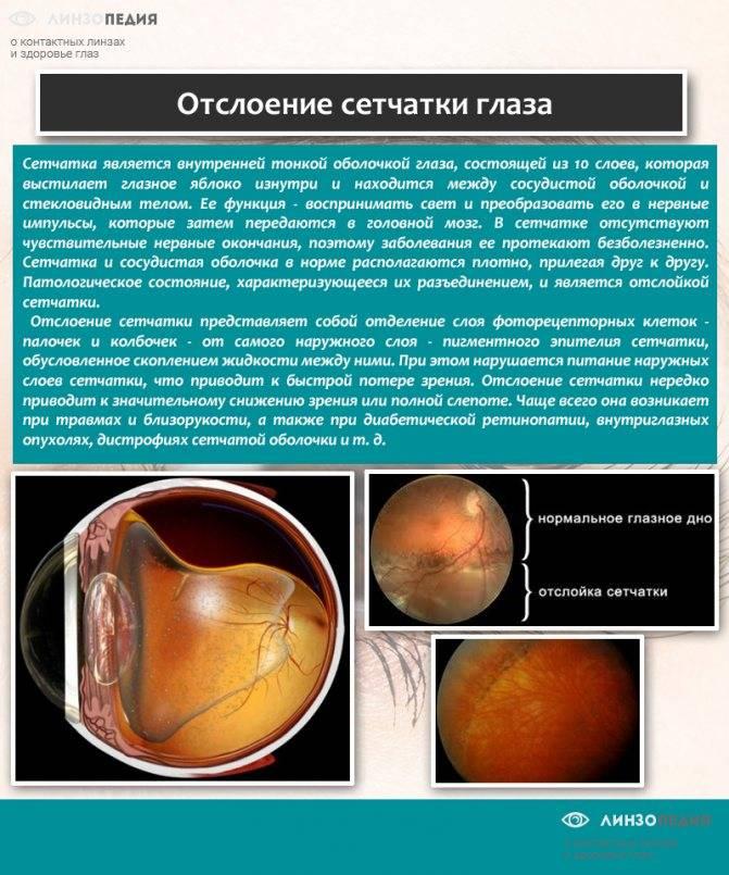 Отслоение сетчатки глаза - что это, симптомы, лечение, фото, причины