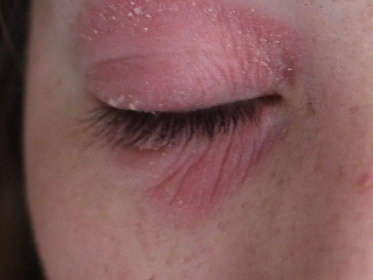 Аллергия на глазах, веках: причины, лечение в домашних условиях, препараты, виды, фото, симптомы (веки чешутся, опухли, реакция на холод)