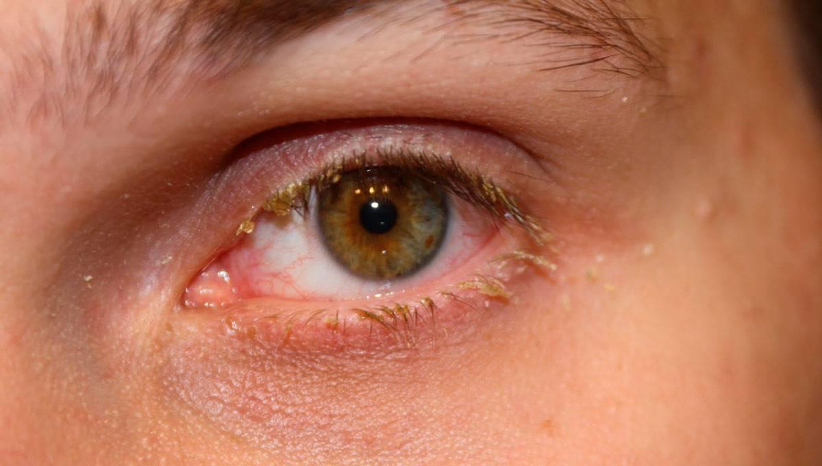 """Гнойный конъюнктивит: симптомы и лечение - """"здоровое око"""""""