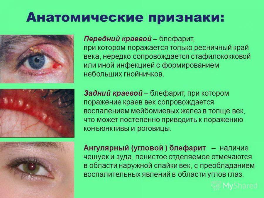 Блефарит у детей (17 фото): лечение блефарита глаз у новорожденных, чем лечить чешуйчатую форму