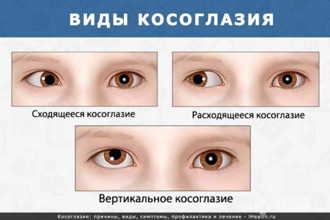 Расходящееся косоглазие у детей: причины, лечение oculistic.ru расходящееся косоглазие у детей: причины, лечение