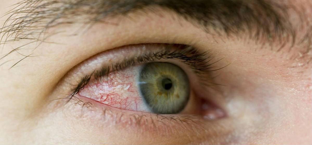 """Плавающие ниточки в глазах: причины, лечение - """"здоровое око"""""""