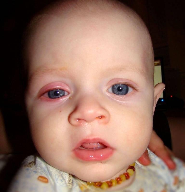 Какие препараты помогут вылечить конъюнктивит у ребенка 3 лет