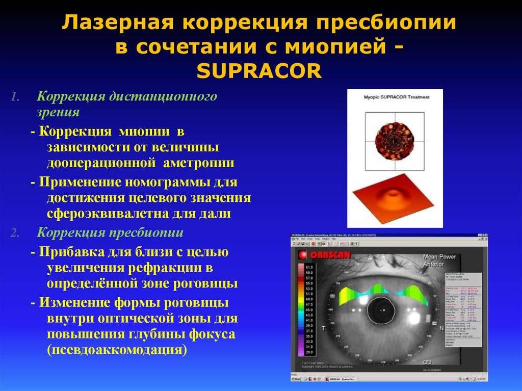Лечение дальнозоркости (гиперметропии), методы лечения, лазером, безоперационные методы.