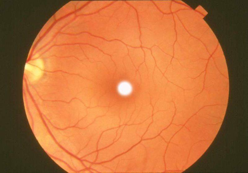 Рак сетчатки глаза — его опасность и способы лечения