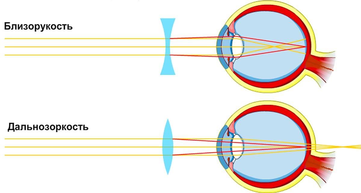 Чем отличается близорукость от дальнозоркости: разница и отличия простыми словами