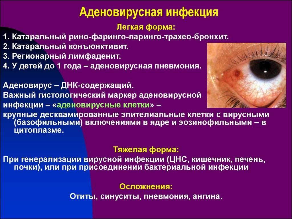 Вирусный конъюнктивит у детей - классификация, лечение и профилактика