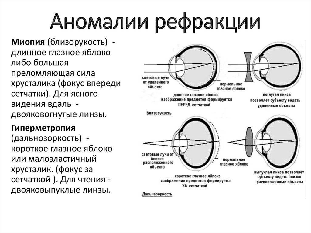 Нарушение рефракции глаза: определение, виды в офтальмологии и влияние на зрение