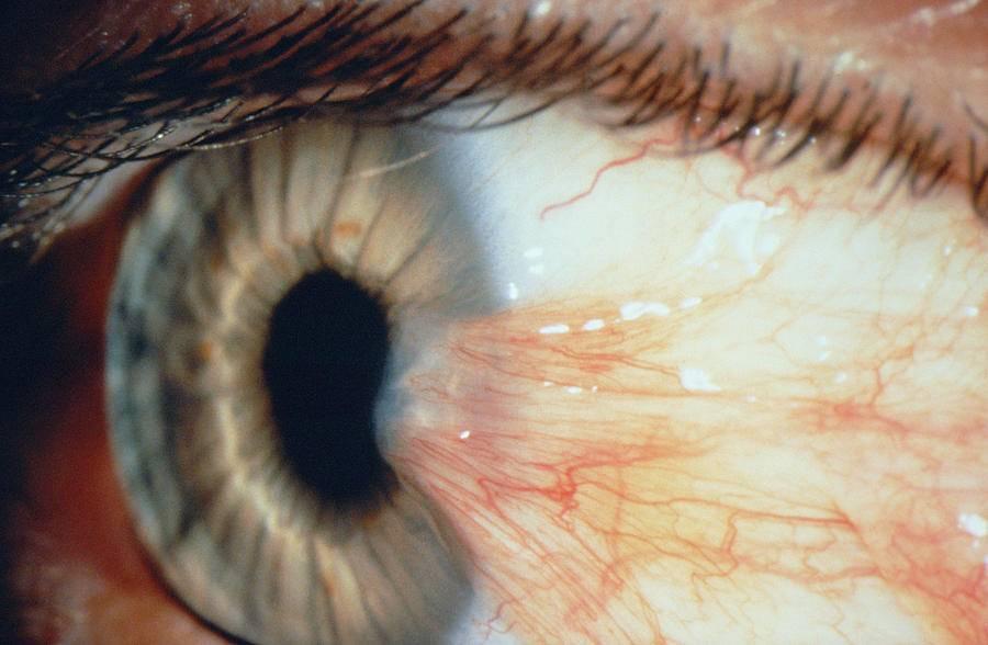 Птеригиум глаза: причины, лечение, операция | удаление птеригиума