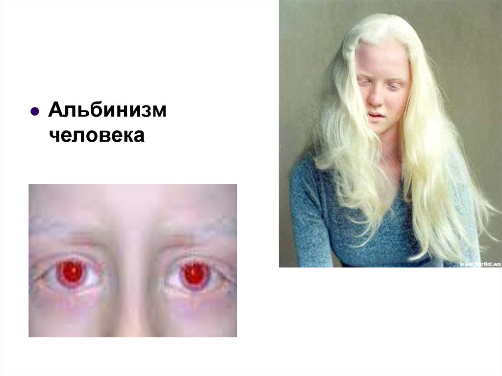 Что такое альбинизм и как живут люди с этой особенностью