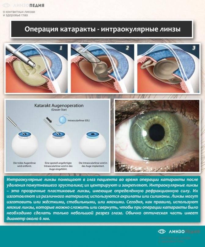 Как спасти зрение? передовой метод лечения катаракты - ультразвуковая и лазерная факоэмульсификация