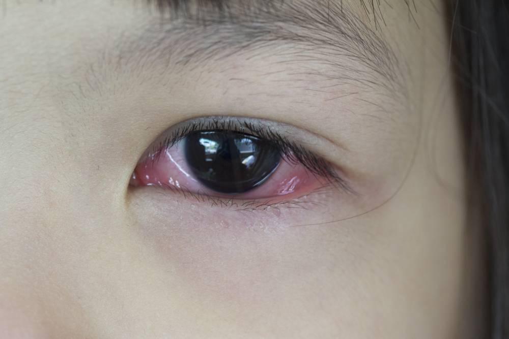 Слезится глаз у ребенка 1 год, в 3, 4, 5 лет: что делать, когда слезотечение в одном или обоих органах зрения